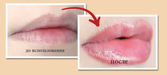 Jelliez Beauty для губ – отзывы о маске, где купить, цена
