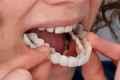 накладки на передний зуб